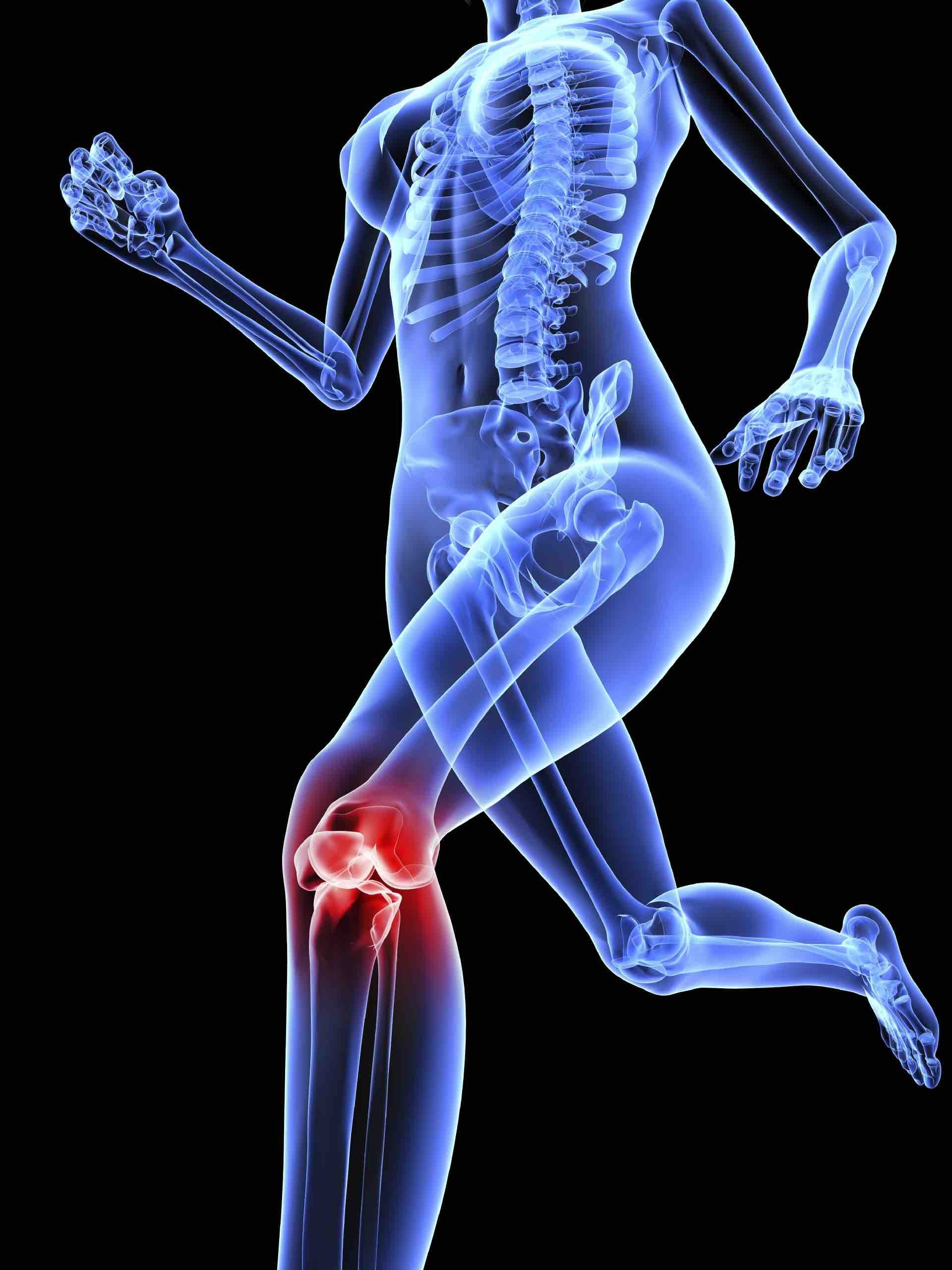 Using Sesame Seeds is Superior to Tylenol for Knee Arthritis
